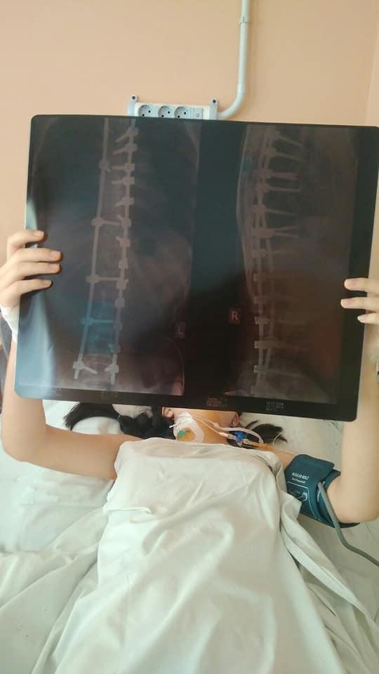 Фінансова допомога на одужання: золотоніська школярка пройшла перший етап лікування
